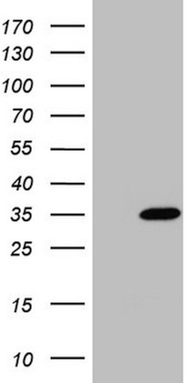 NUDT21 Antibody in Western Blot (WB)