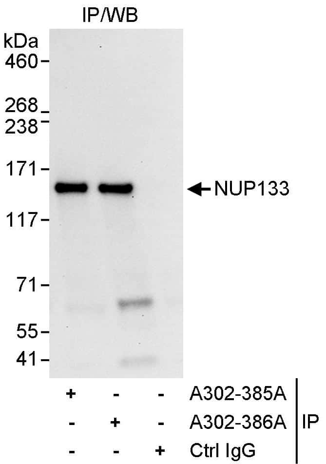 NUP133 Antibody in Immunoprecipitation (IP)
