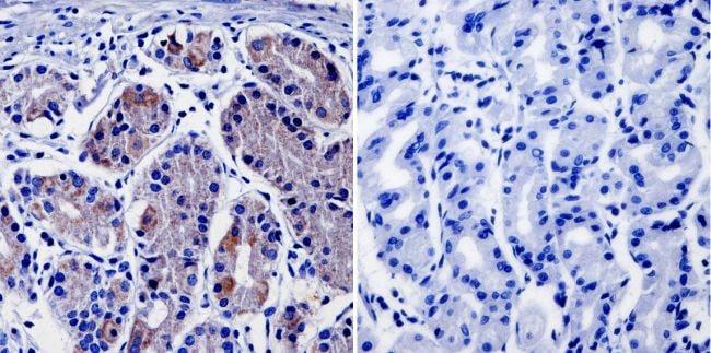 NF1 Antibody in Immunohistochemistry (IHC)