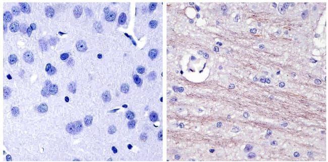 NEFL Antibody in Immunohistochemistry (IHC)