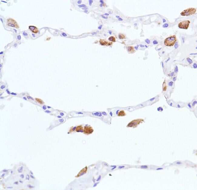 iNOS Antibody in Immunohistochemistry (IHC)