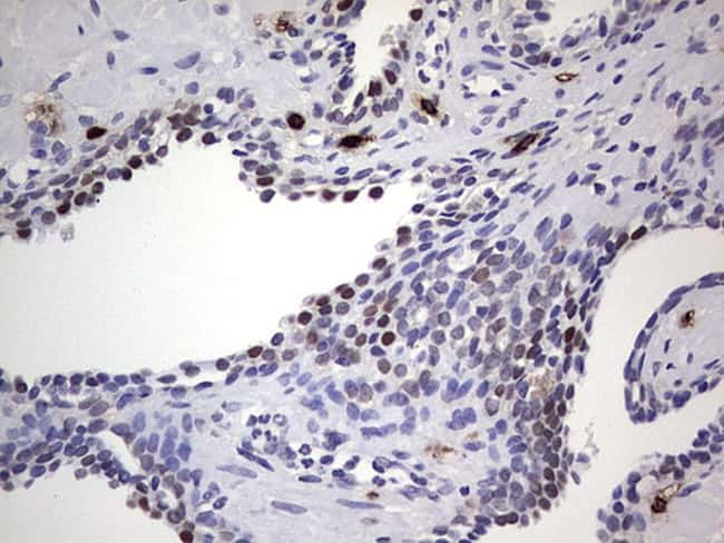 Nkx3.1 Antibody in Immunohistochemistry (Paraffin) (IHC (P))