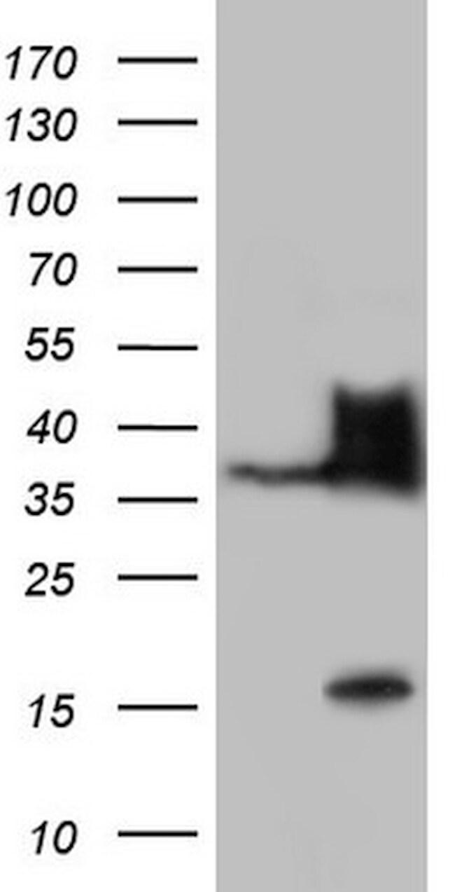 Nkx3.1 Antibody in Western Blot (WB)