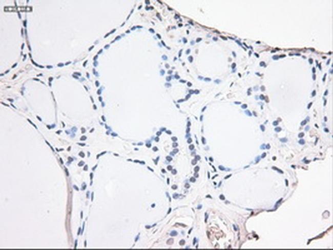 Noggin Antibody in Immunohistochemistry (Paraffin) (IHC (P))