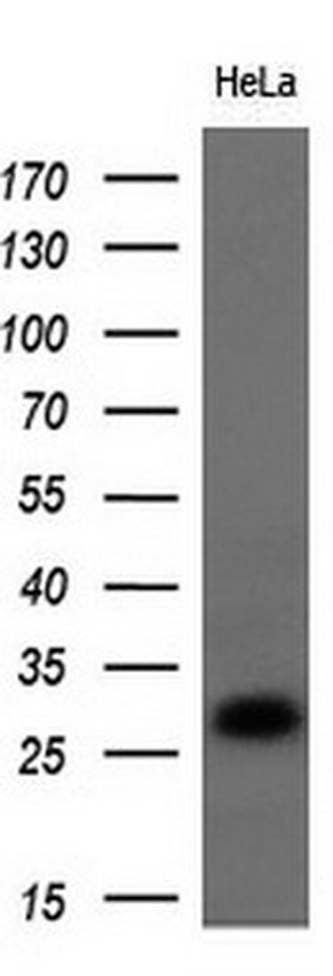 Noggin Antibody in Western Blot (WB)