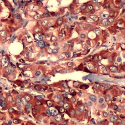 S6 Antibody in Immunohistochemistry (IHC)