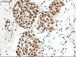 Notch1 Antibody in Immunohistochemistry (Paraffin) (IHC (P))
