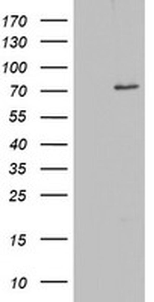 OAS2 Antibody in Western Blot (WB)