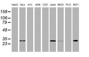 OBFC2B Antibody in Western Blot (WB)