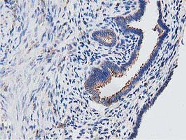 OGFOD1 Antibody in Immunohistochemistry (Paraffin) (IHC (P))
