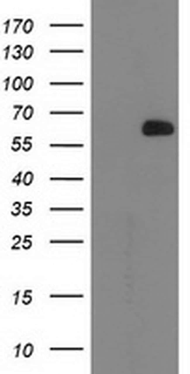 OGFOD1 Antibody in Western Blot (WB)