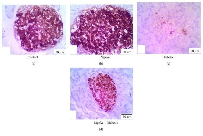 Insulin Antibody