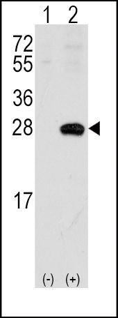 Sigma-1 Receptor Antibody in Western Blot (WB)