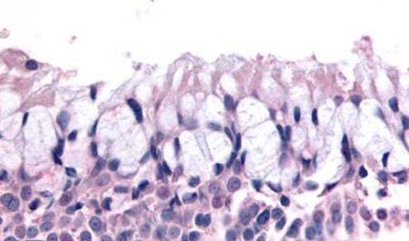 OR6K3 Antibody in Immunohistochemistry (Paraffin) (IHC (P))