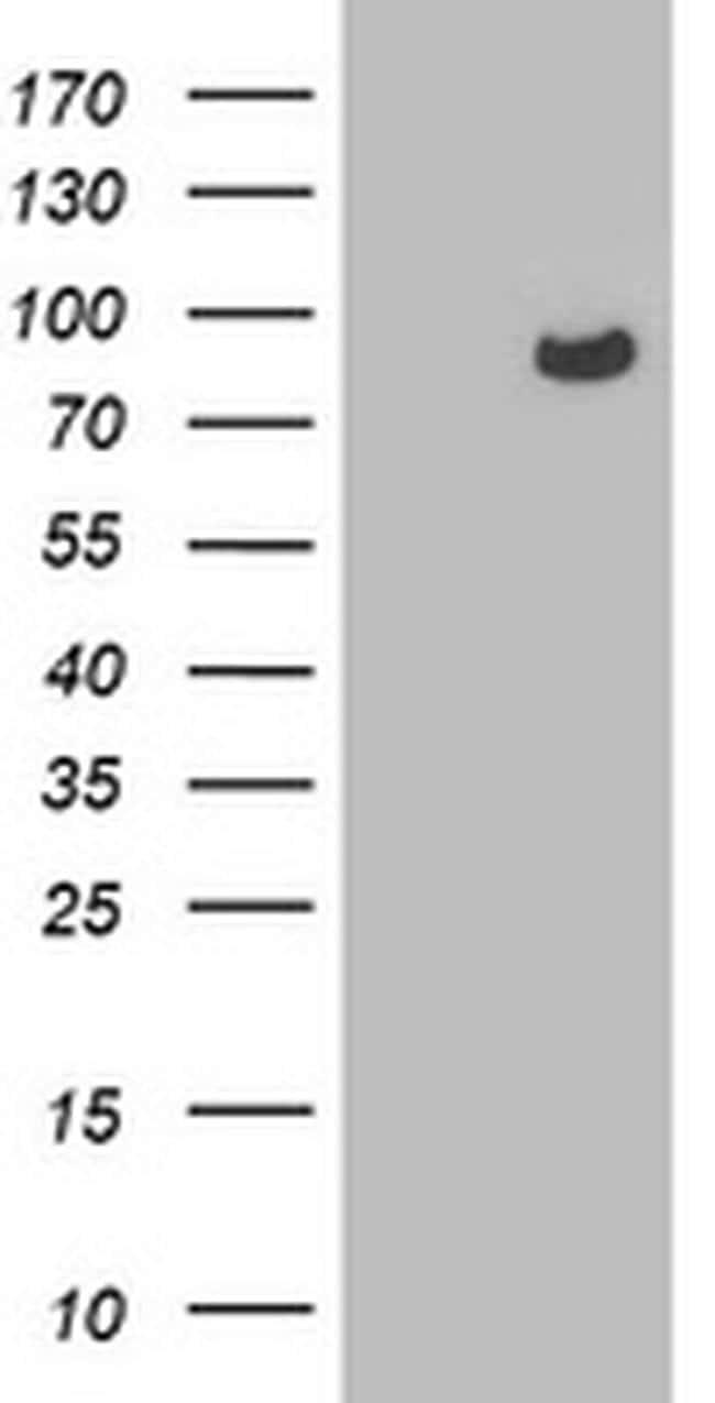 OSBP Antibody in Western Blot (WB)