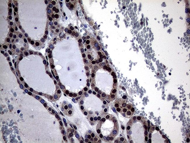 OSGIN2 Antibody in Immunohistochemistry (Paraffin) (IHC (P))