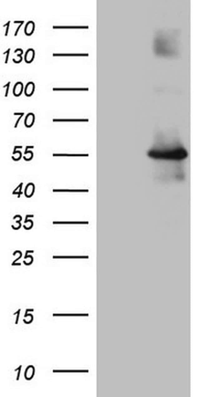 OSGIN2 Antibody in Western Blot (WB)
