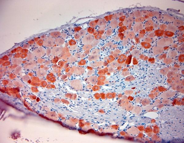 TRPV1 Antibody in Immunohistochemistry (Paraffin) (IHC (P))