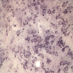 Sortilin Antibody in Immunohistochemistry (IHC)
