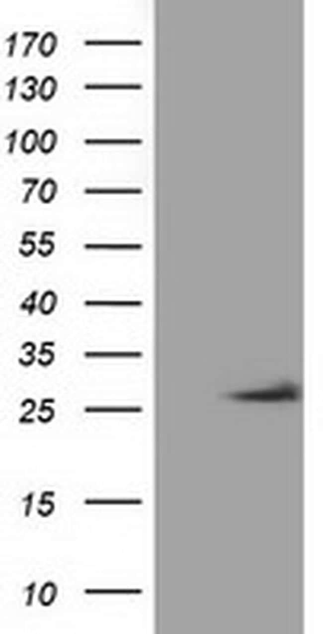 OTUB2 Antibody in Western Blot (WB)