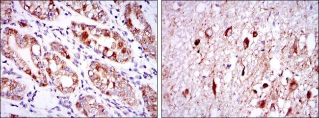 OTX2 Antibody in Immunohistochemistry (IHC)