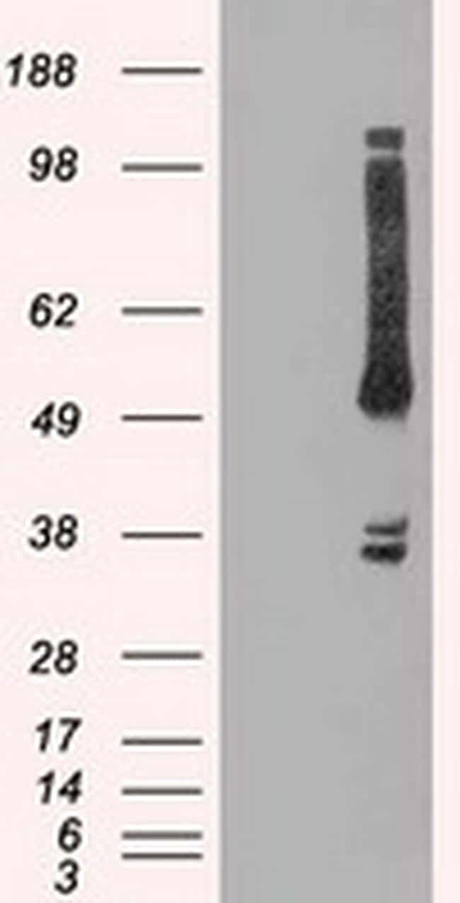 OXSR1 Antibody in Western Blot (WB)