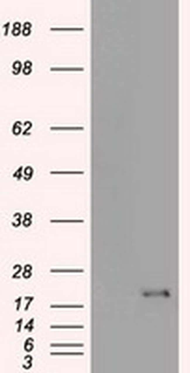 CDKN2A (p16INK4a) Antibody in Western Blot (WB)
