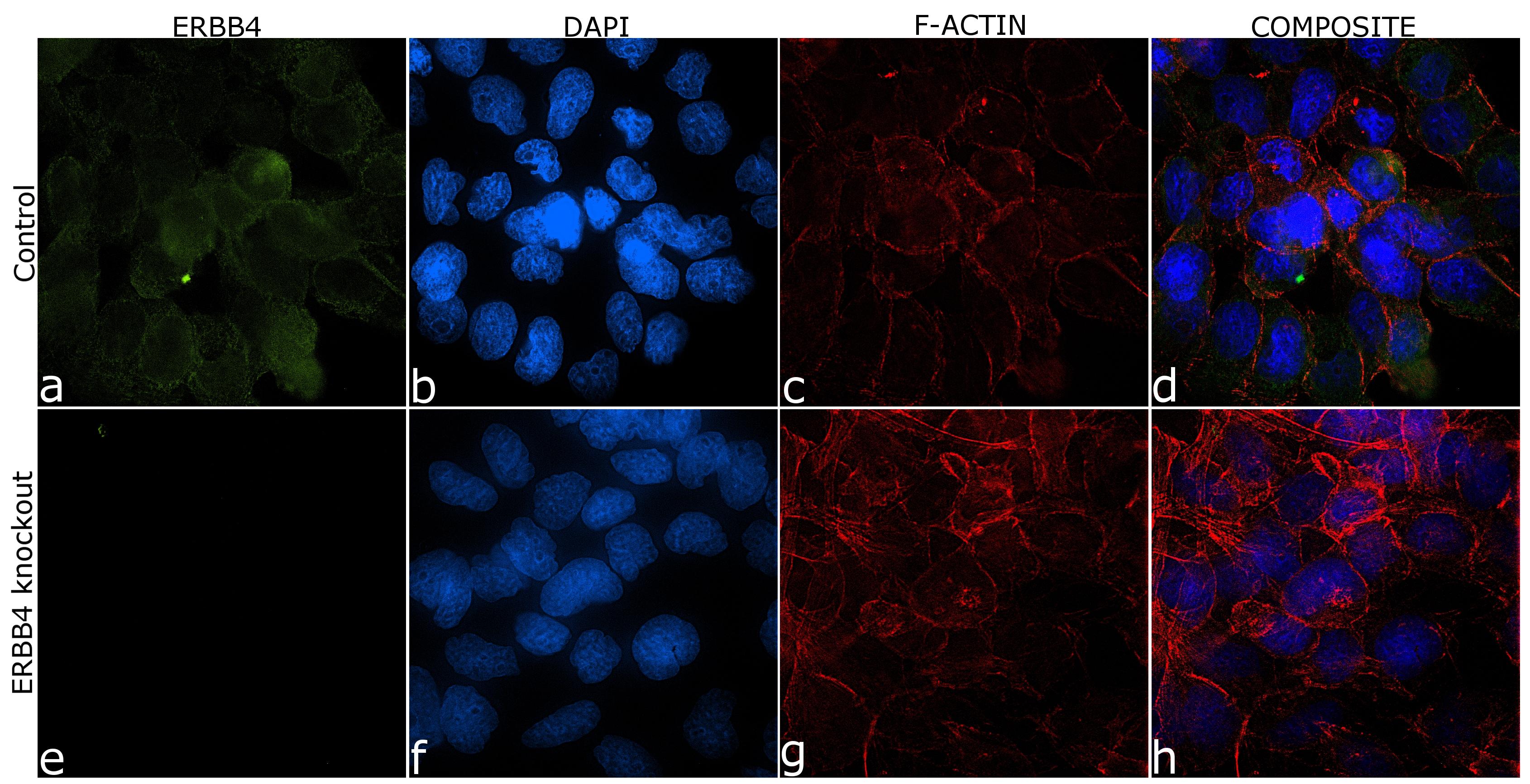 ErbB4 Antibody in Immunocytochemistry (ICC/IF)