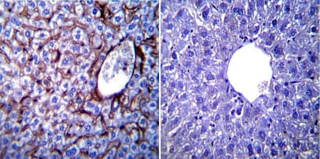 KDEL Antibody in Immunohistochemistry (IHC)
