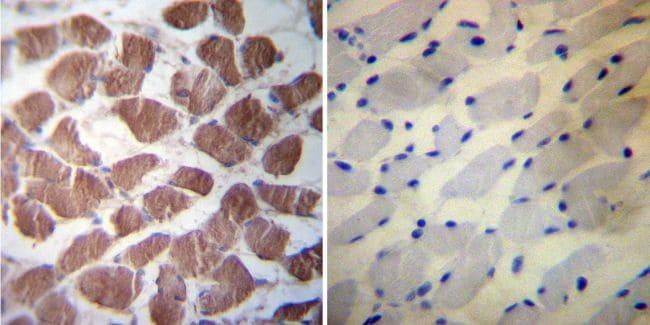 HSP27 Antibody in Immunohistochemistry (IHC)