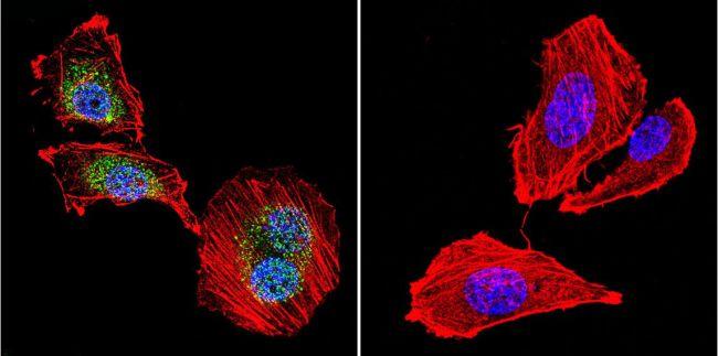 NFATC4 Antibody in Immunofluorescence (IF)