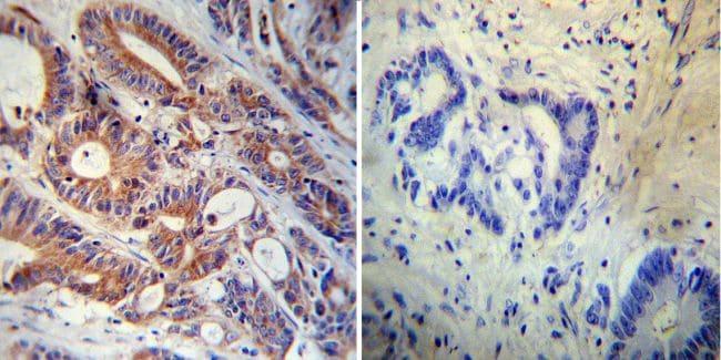FKBP12 Antibody in Immunohistochemistry (IHC)