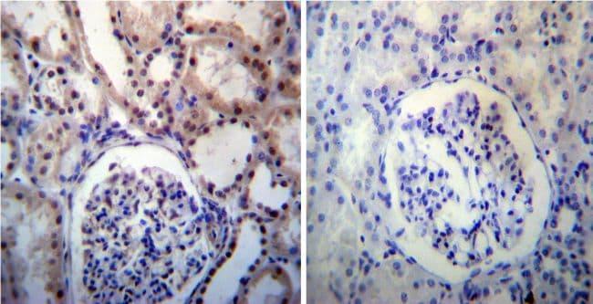 NPM1 Antibody in Immunohistochemistry (IHC)