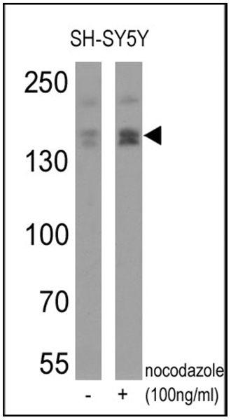 Phospho-nNOS (Ser1417) Antibody in Western Blot (WB)
