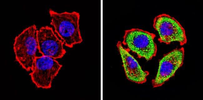 ADORA2A Antibody in Immunofluorescence (IF)