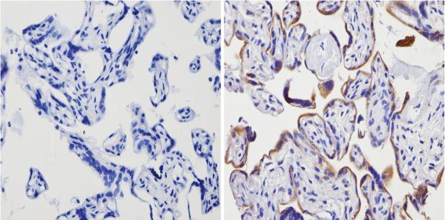 ADORA2A Antibody in Immunohistochemistry (Paraffin) (IHC (P))
