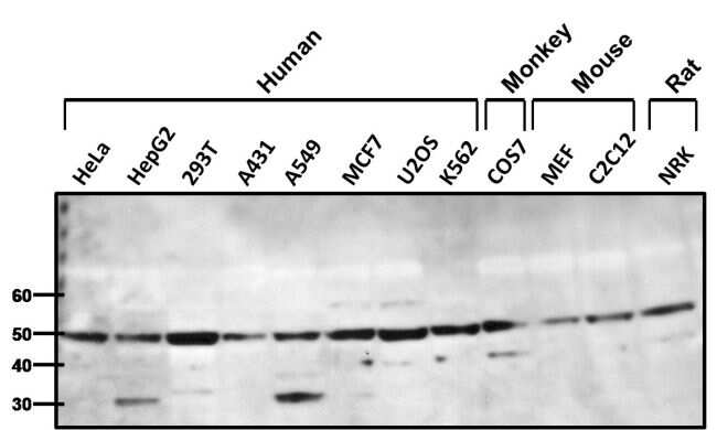 beta-1 Adrenergic Receptor Antibody in Western Blot (WB)