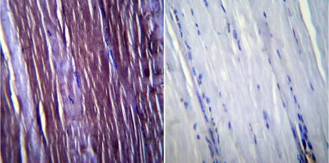 Caveolin 3 Antibody in Immunohistochemistry (IHC)