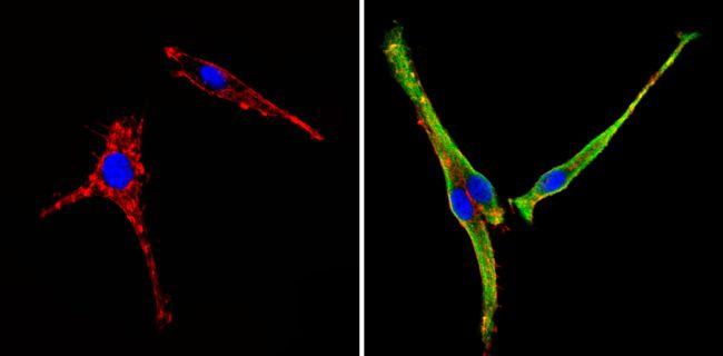 COPII Antibody in Immunofluorescence (IF)