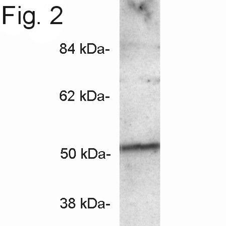 PICK1 Antibody in Western Blot (WB)
