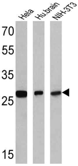 RANBP1 Antibody in Western Blot (WB)