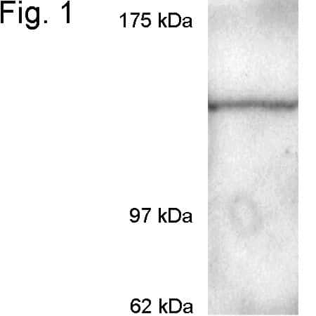CRM1 Antibody in Western Blot (WB)