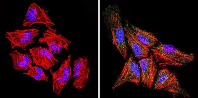 RAC1 Antibody in Immunofluorescence (IF)