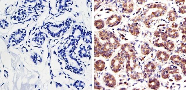 RAC1 Antibody in Immunohistochemistry (IHC)