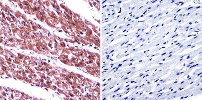 ARF6 Antibody in Immunohistochemistry (IHC)