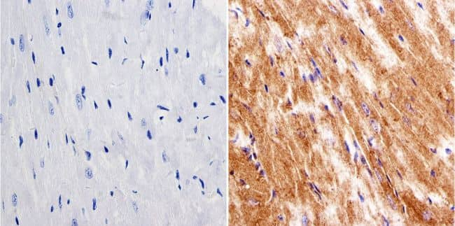 LIN28A Antibody in Immunohistochemistry (IHC)