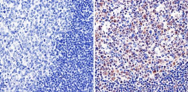 GATA1 Antibody in Immunohistochemistry (Paraffin) (IHC (P))