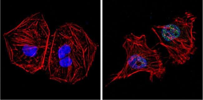 GATA4 Antibody in Immunofluorescence (IF)