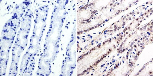 GATA6 Antibody in Immunohistochemistry (IHC)