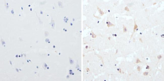 CPEB1 Antibody in Immunohistochemistry (Paraffin) (IHC (P))